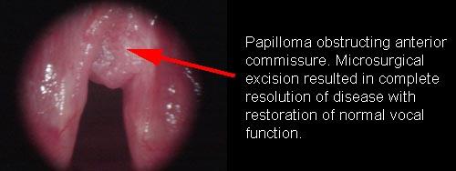 laryngeal papilloma